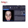 Portable skin analysis machine manufacturers for sale