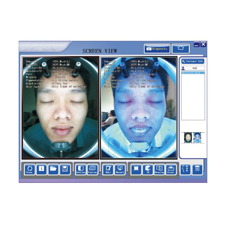 The latest portable facial analyser made in China
